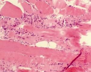 Полимиозит
