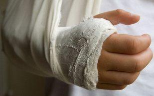Специалисты разработали растворяющийся имплантат для лечения переломов
