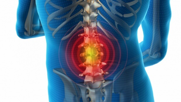 Межпозвоночная грыжа — причины возникновения, клиника и лечение