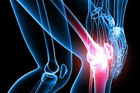 Артрит. Причины и методы лечения артрита