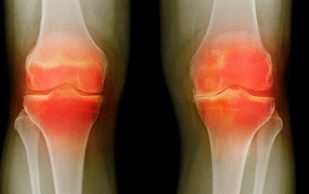 Инъекции озона помогут облегчить боль при артрите