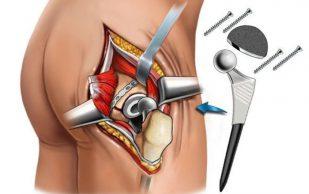 Замена тазобедренного сустава: предпосылки к операции