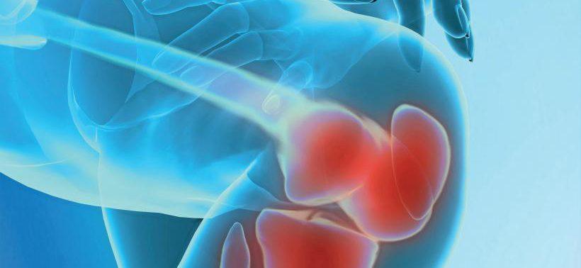 Эндопротезирование коленного и/или тазобедренного сустава – независимый фактор риска развития инфаркта миокарда