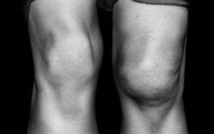 Опухло колено: возможные причины и подходы к лечению