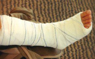 Особенности лечения при переломе берцовой кости