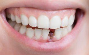Стоматология. Сила косметической стоматологии