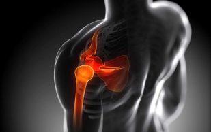 Ученые рассказали, как не навредить суставам