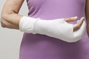 Лечение перелома: наложение гипсовой повязки