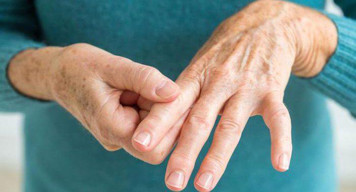 Хламидный артрит