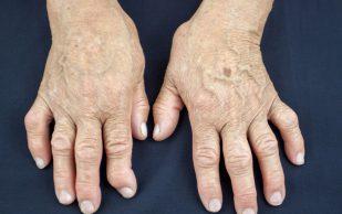 Создано лекарство от артрита без побочных эффектов