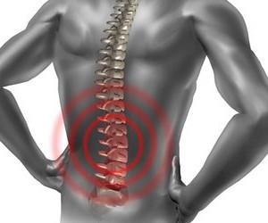 Боль в спине: когда нужно бить тревогу