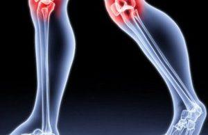 Боль в колене: что можно, а чего нельзя?