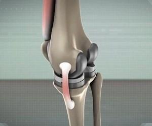 Уникальное покрытие позволит ставить протезы суставов навсегда