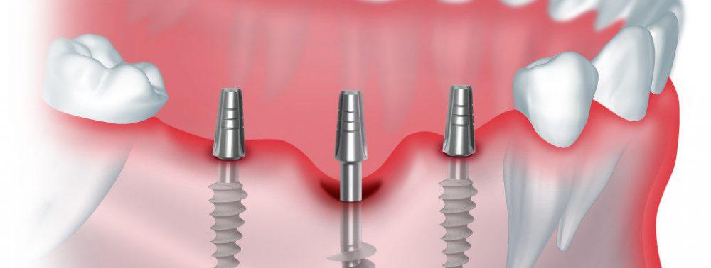 Отличие имплантации от протезирования