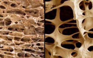 Как диета может помочь при остеопорозе