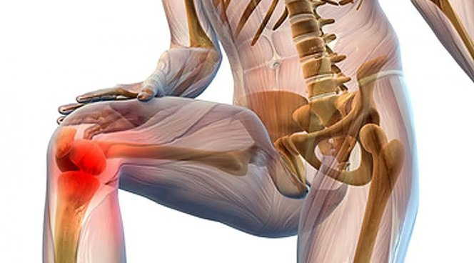Профилактика и лечение заболеваний суставов