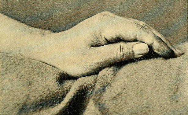 Дрожание рук: причины и лечение
