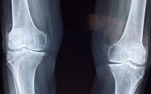 Углеводы приводят к остеоартриту