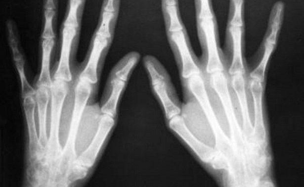 Макрофаги помогут в лечении ревматологических болезней