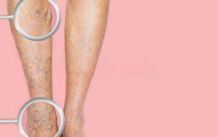 Тромбофлебит ног: лечение народными средствами