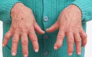 Уколы в суставы остановят ревматоидный артрит