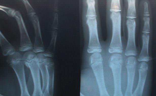 Становятся ли кости после перелома крепче?