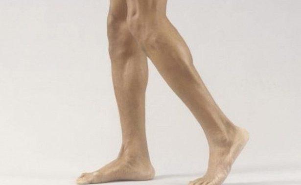 Признаки болезней, о которых дают знать колени