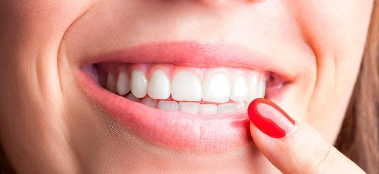 Стоматология. Как узнать, нужна ли мне косметическая стоматология?