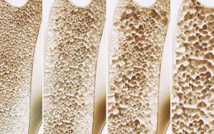 Найдены гены, отвечающие за хрупкость костей в старости