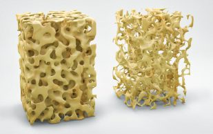 7 способов помешать развитию остеопороза