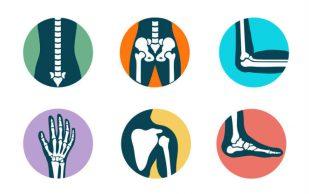 Милые кости: почему спорт лучше, чем кальций