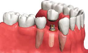 Протезирование зубов. Зубной имплантат