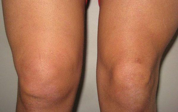Опухло колено: возможные причины и лечение