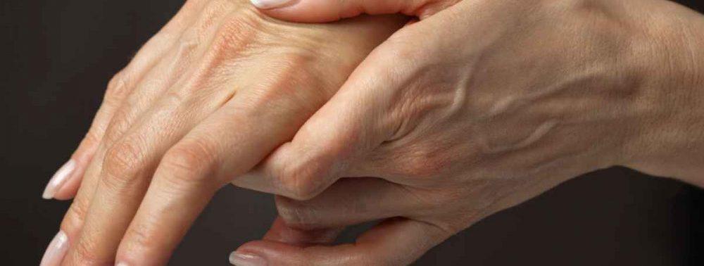Как уменьшить боли и воспаление при артрите: натуральные средства