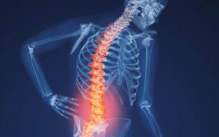 Как защитить свои кости и предотвратить остеопороз: 7 советов