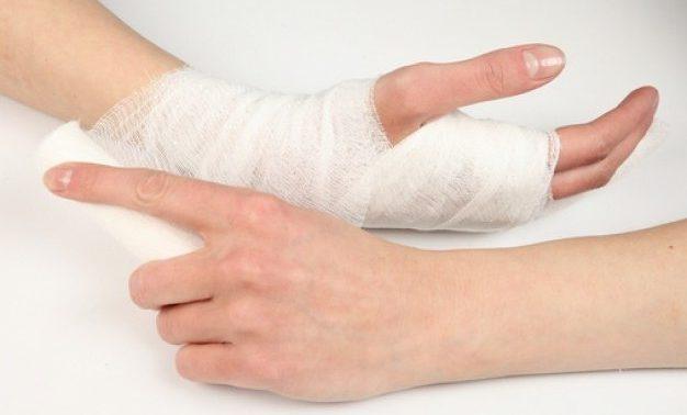 Чем облегчить боль при переломе?