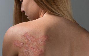 Псориаз: от причин до лечения болезни