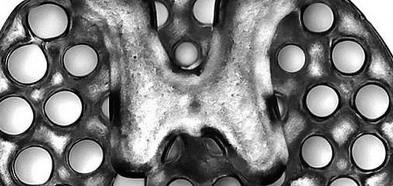 3D-принтер позволил восстановиться после травм позвоночника