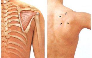 Что такое импинджмент-синдром плечевого сустава?