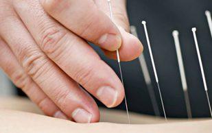 Иглоукалывание как альтернатива лечебной медицины
