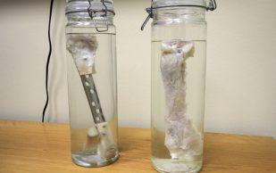 Создан первый идентичный натуральной кости имплант