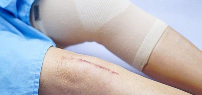 Тазобедренные и коленные импланты прослужат более 25 лет