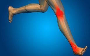 Заболевания суставов: можно ли заниматься спортом?