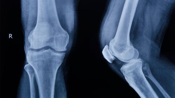 Почему щелкают суставы: причины и последствия