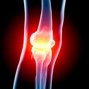 Найдены признаки развивающегося остеоартрита
