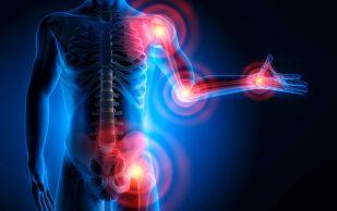 Какие ежедневные привычки приводят к болям в суставах
