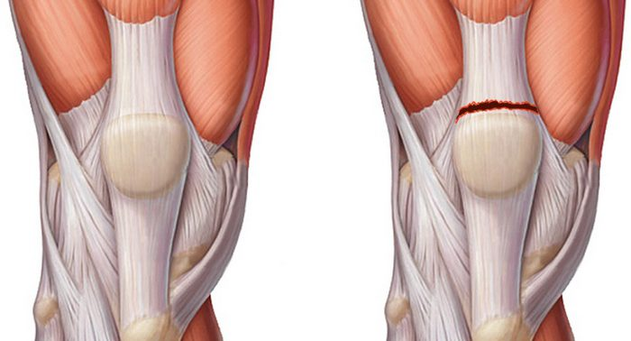 Узнай как укрепить плечевой сустав, чтоб избежать болей