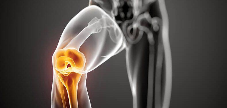 6 продуктов, которые борются с болью в колене