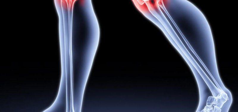 Болят суставы: причины появления артроза после 30 лет