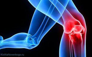 Артроз — что это за болезнь, ее причины и симптомы, а также возможности лечения (замедления) артроза